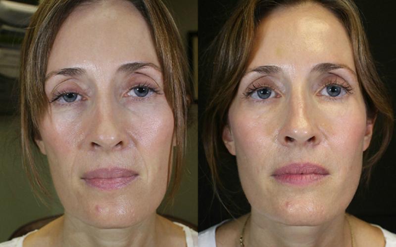 контуринг лица инъекциями фото до и после ваши пряди