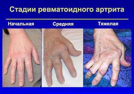 Сухая кожа на суставах пальцев рук